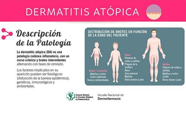 el cgcof publica el primer protocolo infografico de actuacion farmaceutica  sobre lanbspdermatitis atopica