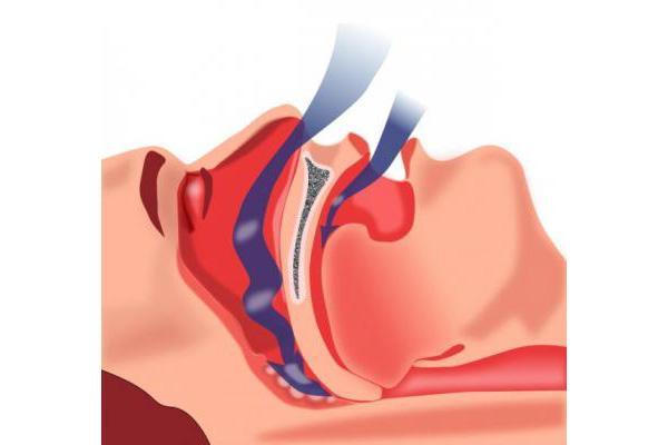 un parche desechable para diagnosticar fiablemente la apnea del sueno