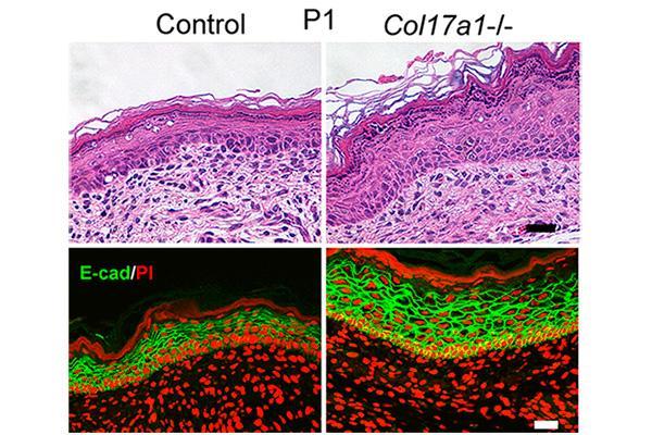 el colageno de tipo xvii es clave en el mantenimiento de una piel joven