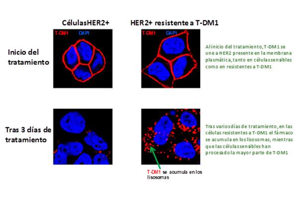 describen un mecanismo de resistencia al farmaco contra el cancer de mama trastuzumabemtansina