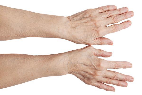 10-consejos-para-sobrellevar-la-rizartrosis