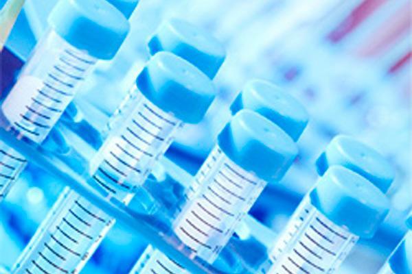 los mayores esfuerzos de la industria farmaceutica se destinan al cancer