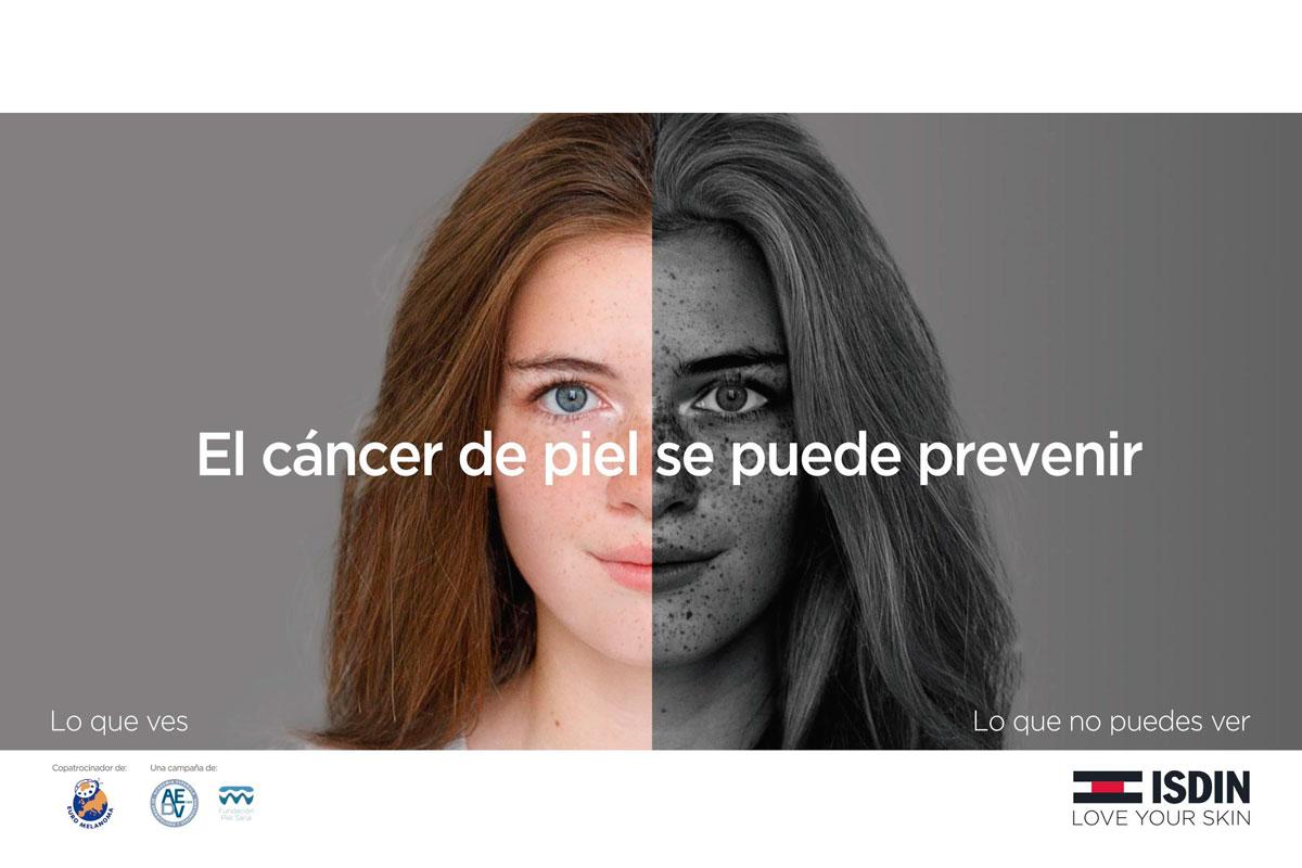 isdin y las farmacias espanolas se unen para fomentar la prevencion del cancer de piel