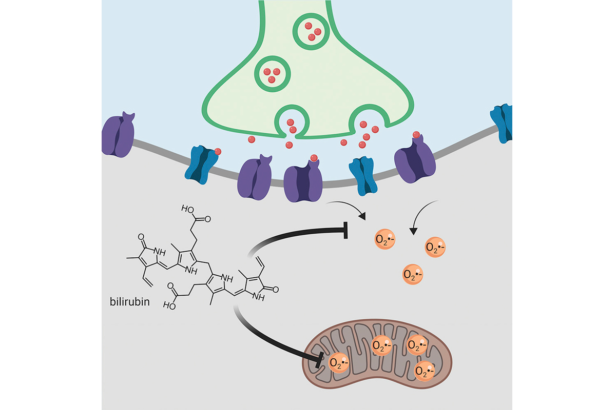 la-bilirrubina-protege-al-cerebro-del-estres-oxidativo