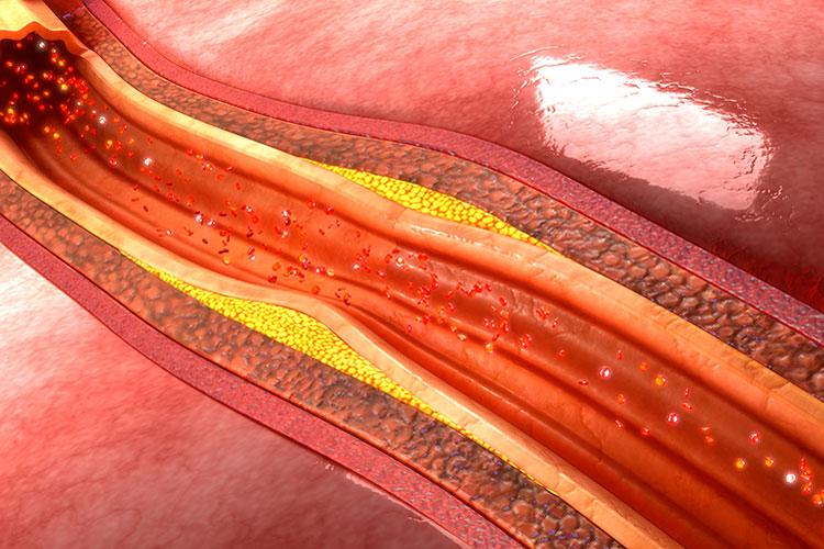objetivo-mejorar-el-diagnostico-y-el-tratamiento-de-la-hipercolester