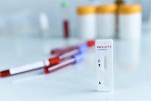 reclaman-una-reforma-legal-para-que-las-farmacias-puedan-hacer-test-r