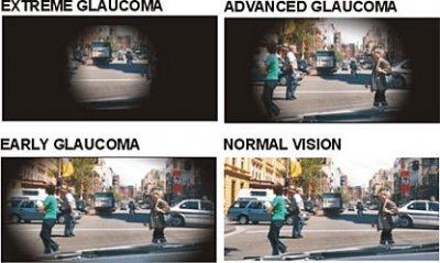 allergan lanza ganfort ud en formato monodosis para el tratamiento del glaucoma