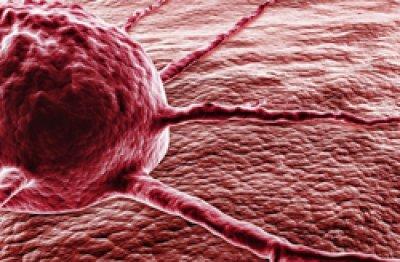 desarrollan modelos estadsticos para predecir el riesgo de cncer