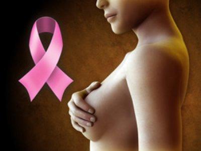 identifican los factores asociados al dolor un aao despuas de la cirugaa del cancer de mama