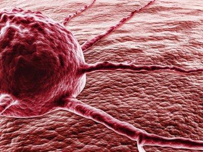 investigadores suecos encuentran una nueva va para tratar el cncer