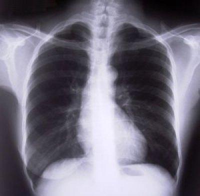 un 75 de pacientes de epoc estan subdiagnosticados