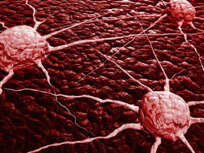 una proteana de supervivencia se perfila como el nuevo objetivo para tratar el cancer