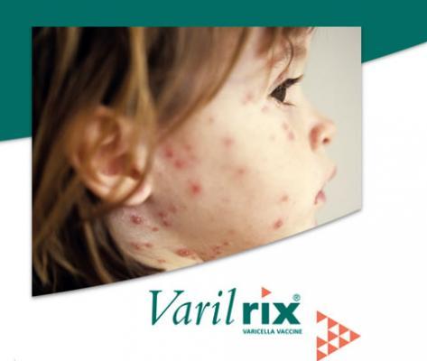 la vacuna de la varicela regresa a las farmacias en febrero